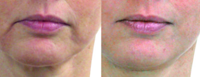 Lips after 12 sessions