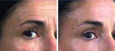 10 sessions for facial lines